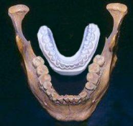 гигантская челюсть